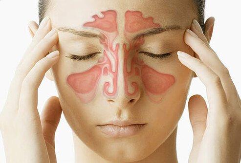 Tannsmerter og bihulene